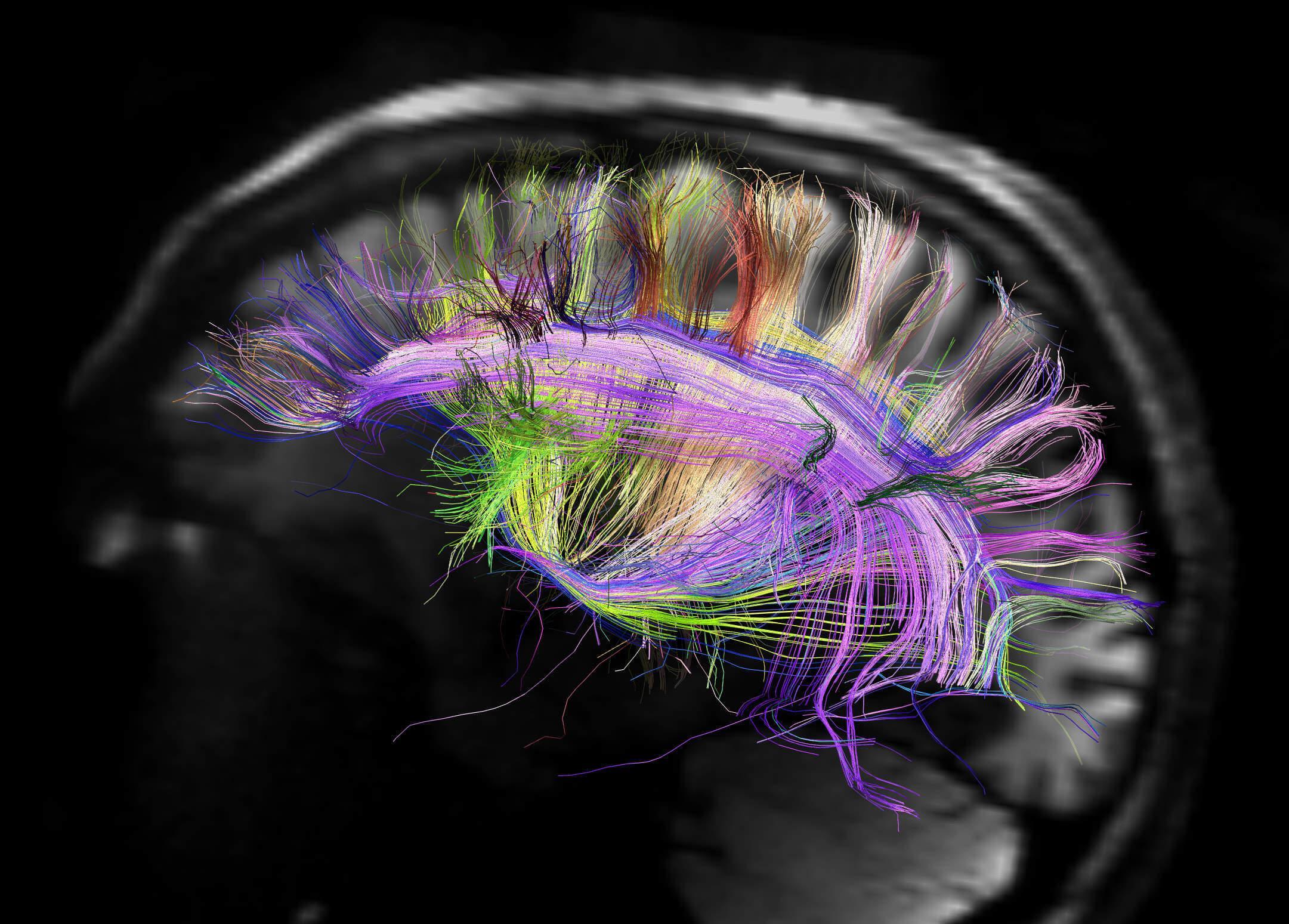 измени свой мозг изменится и